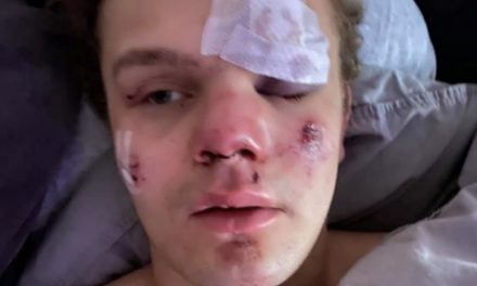 Danish mother tells how her teenage son was beaten into a coma by gang of migrants
